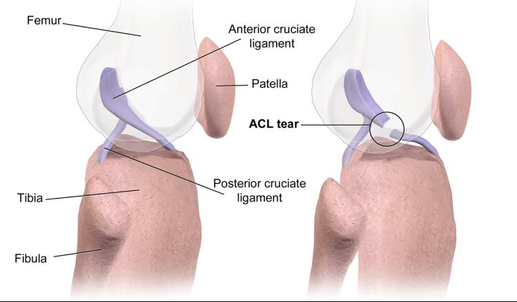 ACL_Tear